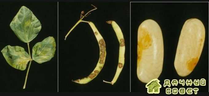 Бактериальная пятнистость фасоли